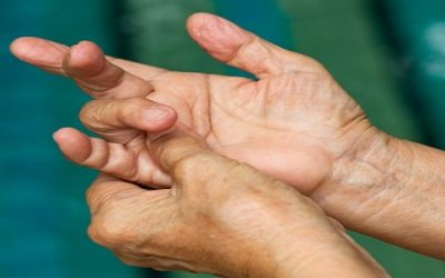 Dupuytren's Contracture Explained