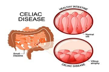 What You Need to Know About Celiac Disease